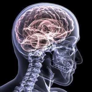 Terapéutica para lesiones cerebrales traumáticas